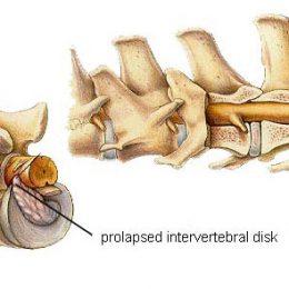 What is disc disease? -Shortcut Thru IVDD