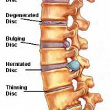 IVDD slipped disc back pain -Shortcut Thru IVDD