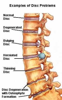 IVDD slipped disc back pain -Shortcut Thru IVDD
